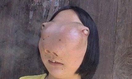 浙江女孩面部長出巨大腫瘤,鼻樑消失雙眼外突,酷似外星生物