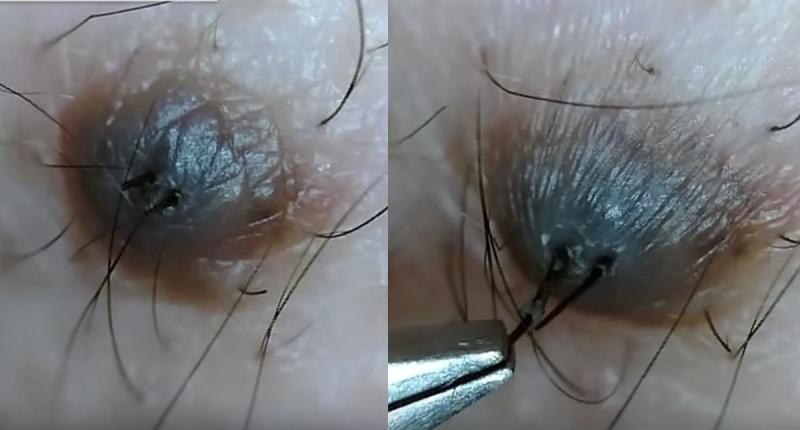 黑痣上有毛到底拔不拔?日本網友在用鎳夾猛扯黑痣上的毛,看到最後感覺全身都鬆散了...崩潰阿!