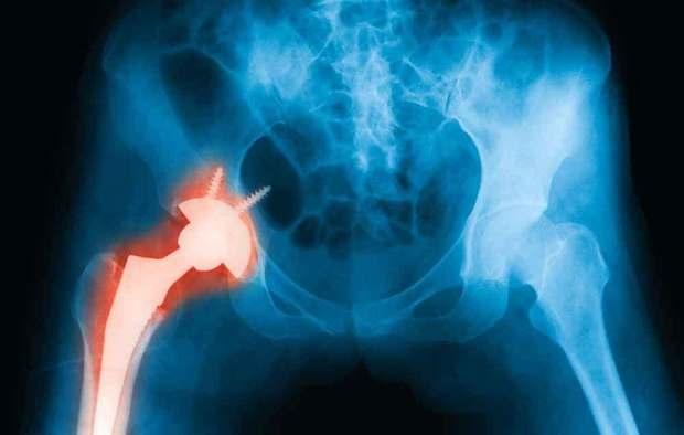 你的臀部肌肉、關節健康嗎?想遠離越來越夯的「人工關節」,就得掌握「黃金4原則」,鞏固妳的大後方!