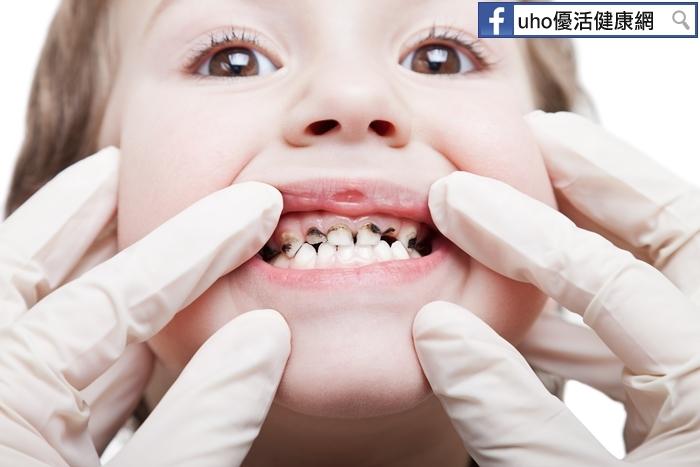 6歲蛀牙率高達79%!預防蛀牙,快來免費塗氟...
