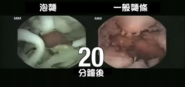 這醫生原本想證實「泡麵沒有這麼不健康」,沒想到泡麵竟在胃內會出現「這種反應」讓大家都嚇傻了!