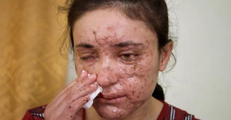18歲的女孩慘遭ISIS綁架淪為「祭品」!每天被不一樣的人輪暴!逃脫後她說出「一句話」…震撼全世界!