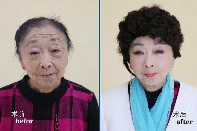 為了嫁給37歲年輕帥哥,71歲老婆婆傾盡家產「整容成年輕少婦」,他們的愛情讓多少人淚崩...