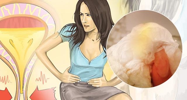 天啊,有90%的人可能都弄錯了!女生尿尿完應該向前擦還向後呢?難怪「這種病」的罹患率如此高!