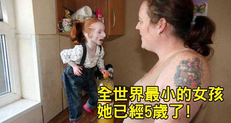 她是全球最小「只有68公分」拇指姑娘,醫生說她活不到1歲,但她上小學後竟然「發生了奇蹟」!