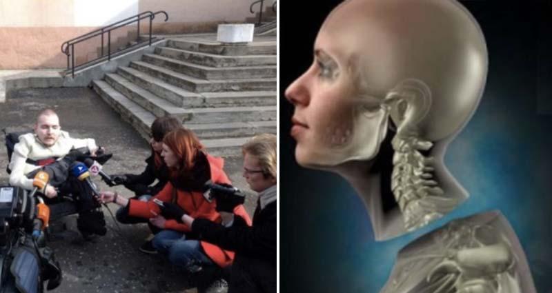 這是全世界第一個成功的換頭手術,總共耗費了36小時,「過程」生不如死!