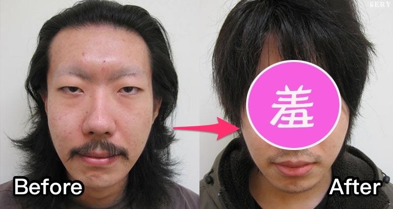 日本單眼皮大叔去割雙眼皮,就是為了徹底擺脫「猥褻臉」!沒想到「超詭異的結果」笑翻所有男女網友了 XD
