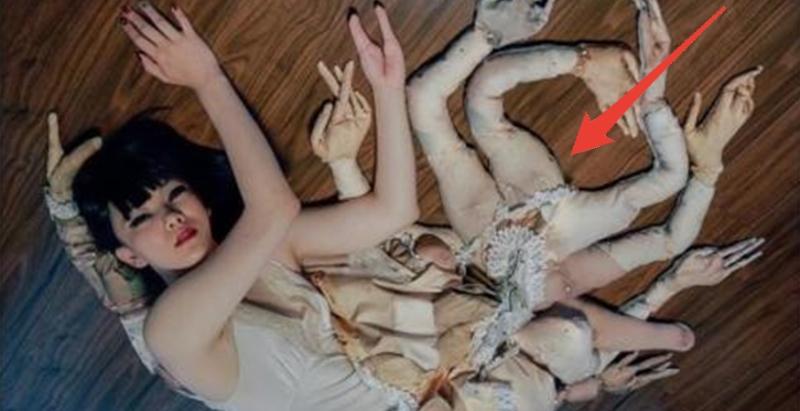 日本有位「11隻手的少女」,雙腿也被截肢,總是被大家嘲笑,於是她做了件讓大家在也笑不出來的事…