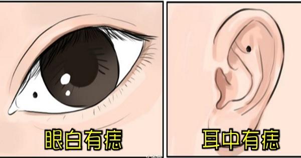 這3個「超特別的身體痣」意義重大!88%的人都不知道的懶人痣、口福痣、健康痣,眼白有痣的人要注意了!