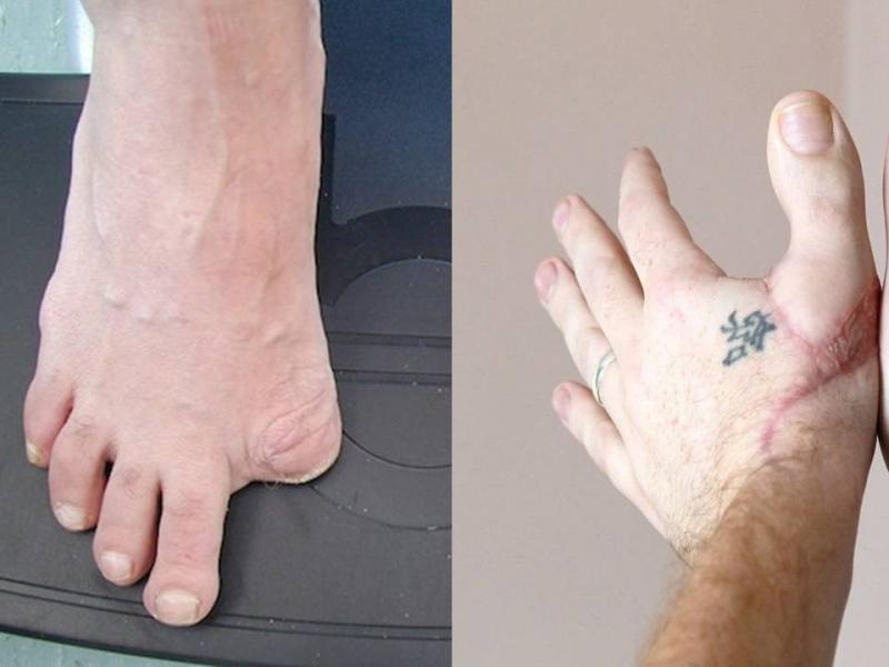 男子去朋友家玩 一脫下鞋就被問為何「沒有腳趾」,這時他笑說「不就在我手上嗎?」